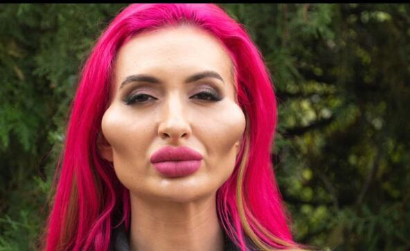 网红模特自称拥有世界最大脸颊